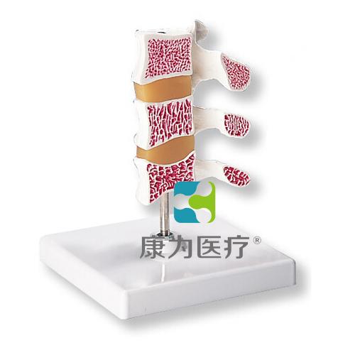 """""""康为医疗""""骨质疏松症模型"""