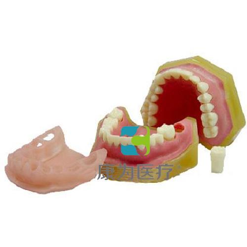 """""""康为医疗""""标准牙颌模型C"""