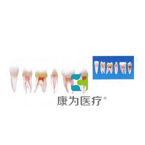 """""""康为医疗""""带髓腔牙齿模型"""