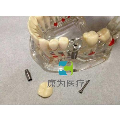 """""""康为医疗""""综合病理水晶牙列模型(可拆)"""