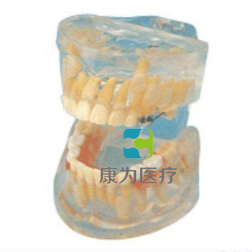 """""""康为医疗""""透明乳牙发育模型"""