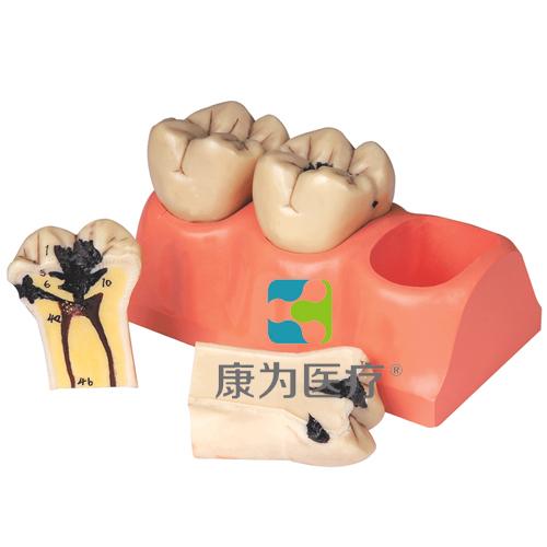 """""""康为医疗""""龋齿分解模型"""