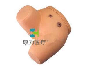 """""""康为医疗""""高级瘘管造口术护理模型"""