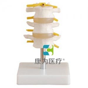 """康为医疗""正常腰椎组合 (三节)"