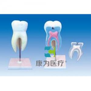 """""""康为医疗""""臼齿带龋齿模型(上颌三根放大)"""